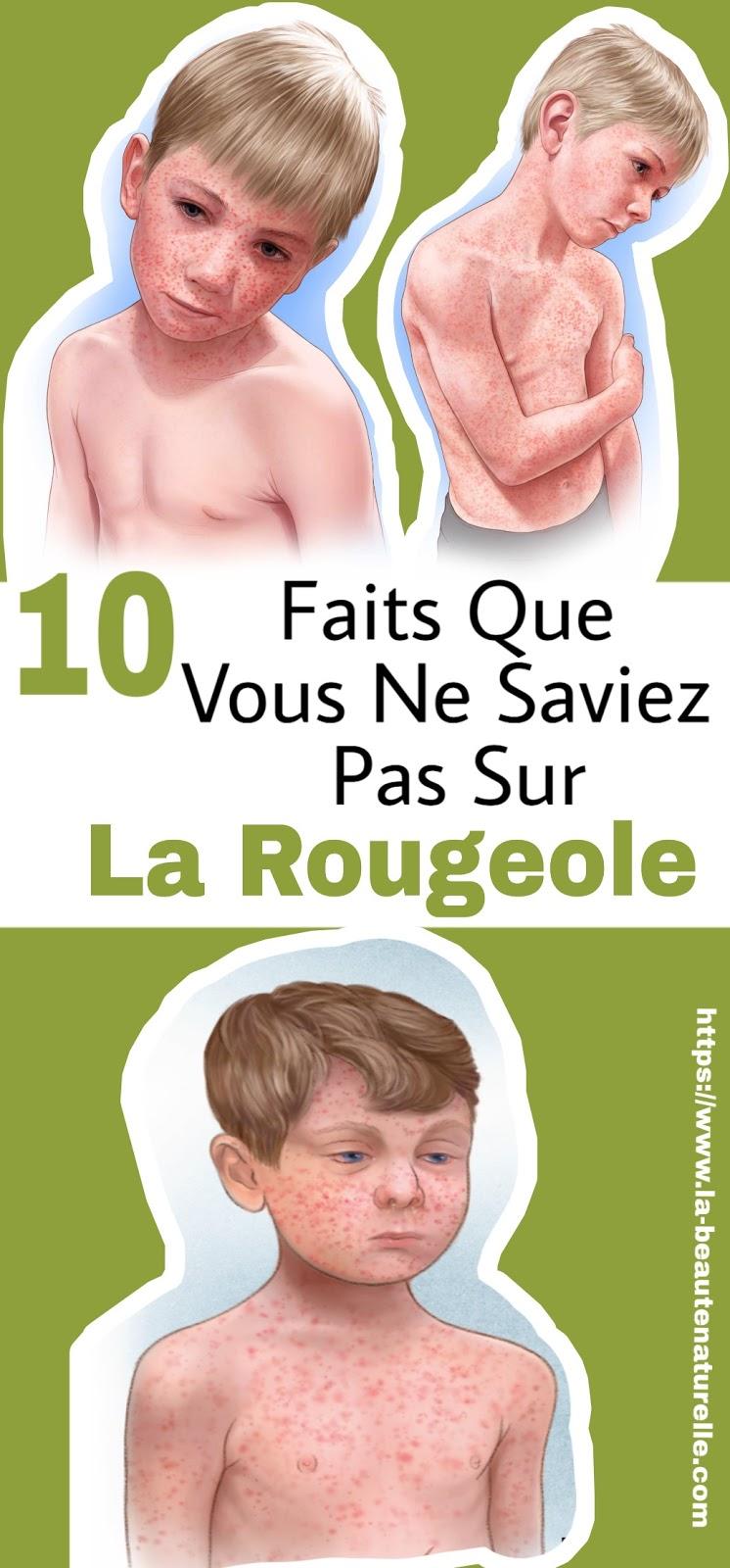 10 Faits Que Vous Ne Saviez Pas Sur La Rougeole