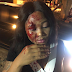 Nigerian lady left with serious injury after she was allegedly attacked by her taxify driver in Lagos