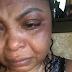 Shekinah Jo Beat Up By Ex-Boyfriend