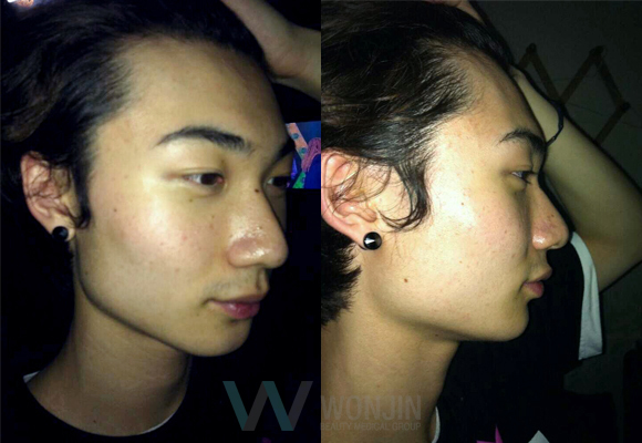 짱이뻐! - Look Like a Young Boy Again With Korean Face Contouring