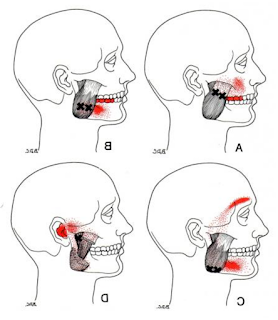 Anatomy of the Sinew Channels: The Masseter and Pterygoids