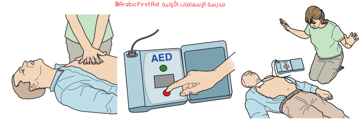Use-aed-Defibrillator-إستخدام-مزيل-الرجفان