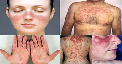 Lupus Disease Causes Symptoms and Treatment