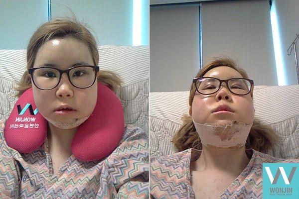 짱이뻐! - A New Life After Getting Rid of My Protruding Jaw