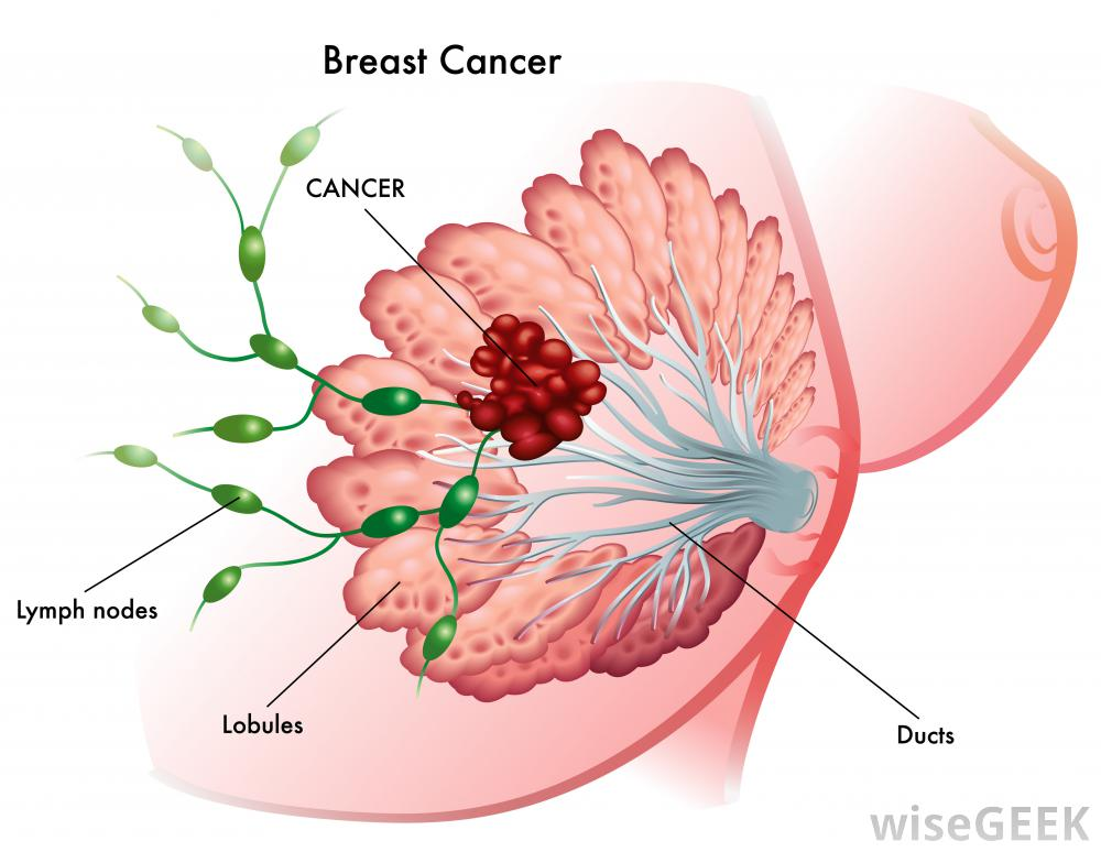 cancer pictures breast