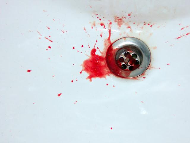 Resultado de imagen para sangre en el inodoro