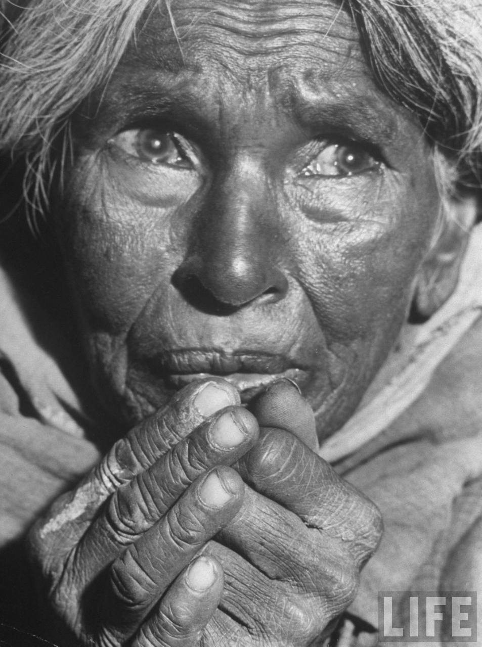 Starving middle-aged Indian woman who has aged significantly as a result of famine over the last 2 yrs. due to a drought