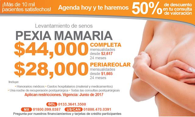 levantamiento de mama pecho caido pexia mamaria precio cirugia guadalajara