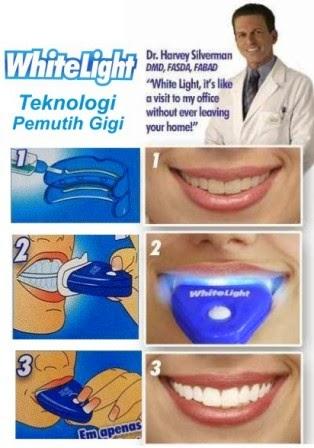 White Light Pemutih Gigi Dan Cara Pakainya Dokter Gigi