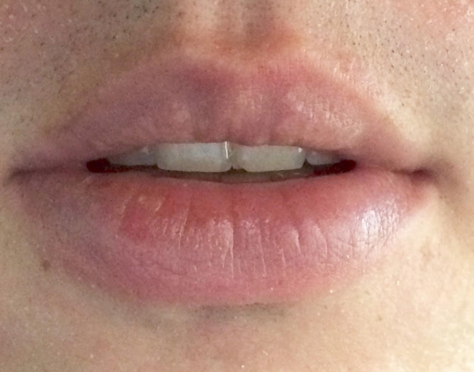 Exfoliative Cheilitis Blog: Lip status and treatment routine
