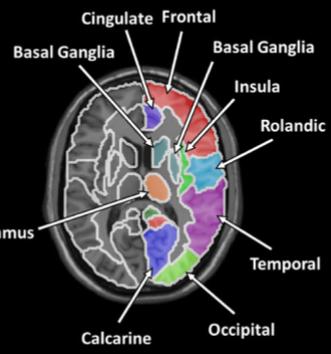 図:梗塞の位置