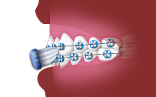 Soins dentaires tout en portant des accolades