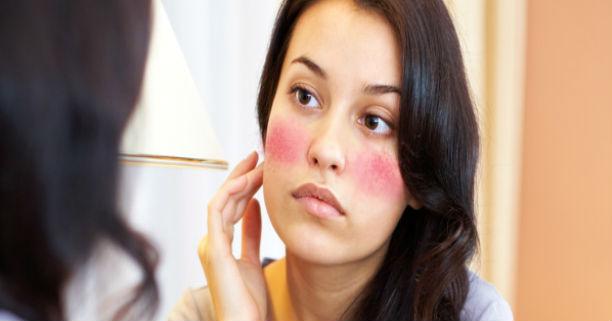 Ciri-Ciri Wajah Terkena Alergi Kosmetik