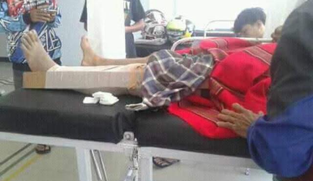Tak Hati-hati, Seorang Pengendara Motor Terjatuh di KM.3 Makale,  Hingga Kaki Patah