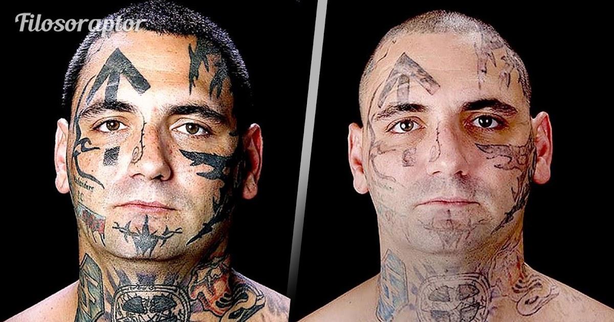 hombre ex skinhead se somete a tratamiento para borrar sus tatuajes cuando se convierte en padre