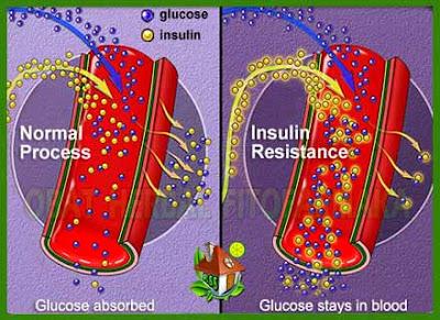 insulin kurang, glukosa dirubah jadi insulin, pankreas hasilkan insulin
