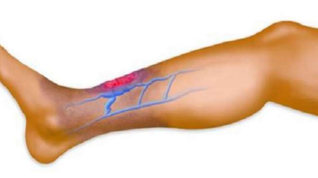Do You Suffer From Poor Circulation? Here It Is How To Solve The Problem In Only 30 Minutes!