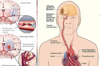 https://habbatuntop.blogspot.com/2018/02/obat-penyakit-stroke-berat-alami-yang.html