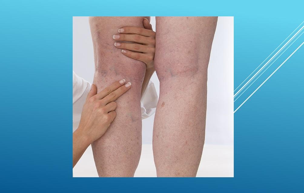 ¿Qué está causando este dolor en la parte posterior de mi rodilla?
