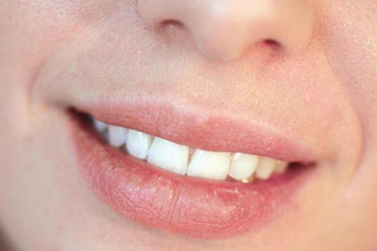 cara mengatasi bibir kering dan pecah-pecah dengan menggunakan madu