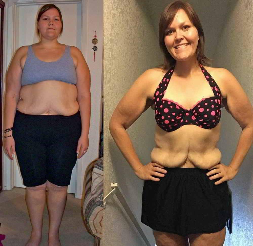 Akibat Kulit Kendur Setelah Berat Badan Turun? Cegah Dengan Cara Ini