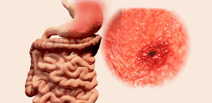 cómo curar las úlceras gástricas