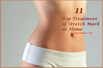 11-top-treatment-of-stretch-marks-at-home