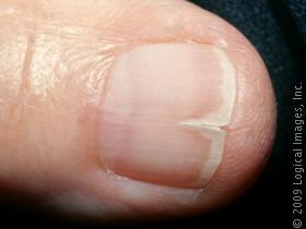 I split my toe nail down the middle, what do i do ...