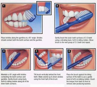 Menyikat Gigi Yang Benar, Ini Caranya