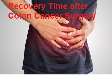 Recovery Time after Colon Cancer Surgery