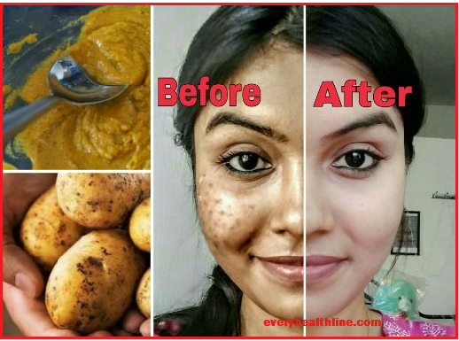 natural-age-spots-removal