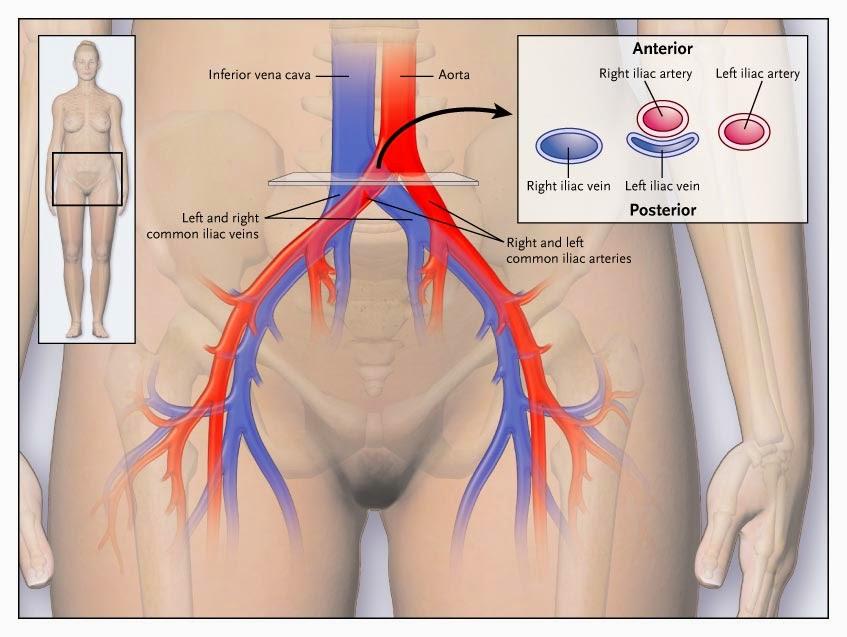 A síndrome de Cockett ou May Thurner também é responsável pelo aparecimento das varizes pélvicas e varizes na vagina