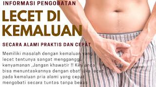 Merk Obat Gejala Penyakit Sipilis Super Ampuh Kemaluan%2Blecet
