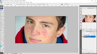Cara Edit Foto Agar Muka Bersih Bebas Noda Menggunakan Photoshop