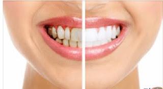 للتخلص من تسوس الأسنان