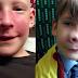 Το τσίμπημα στη μύτη του γιου της είχε πρηστεί σαν καρύδι.. Μόλις οι γιατροί κατάλαβαν τι ήταν, πάγωσαν!