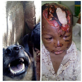 Mother Of A Boy Who Survived Horrible Moments From Rottweiler Dog, Thank God For His Mercy