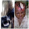 Little Omonigho dares death, survives Rottweiler devils after 3 years. See photos!!!