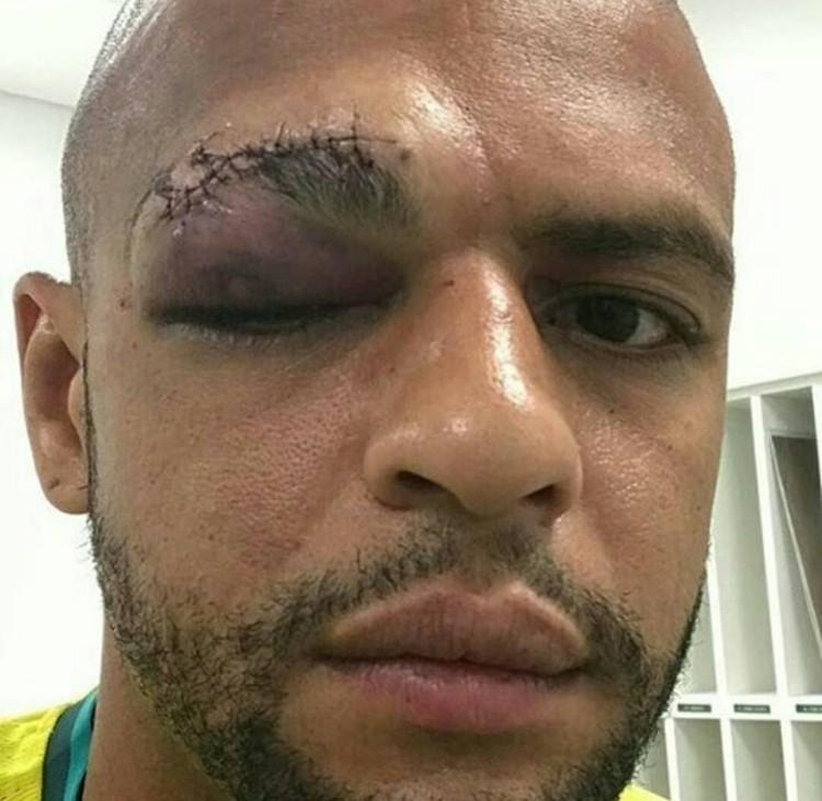 Felipe Melo dopo qualche giorno dell'intervento all'occhio