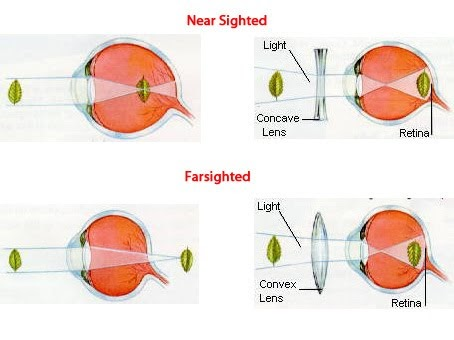 nearsighted vs farsighted yahoo dating