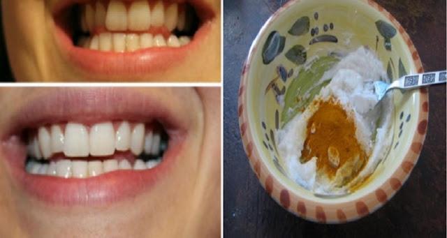 طريقة طبيعية للحصول على اسنان بيضاء لامعة فى وقت قصير