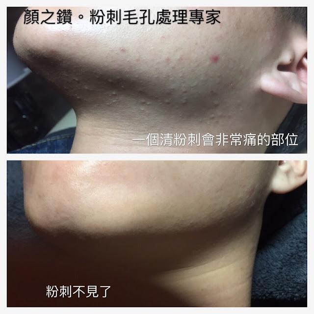 做臉清粉刺保濕護膚差異