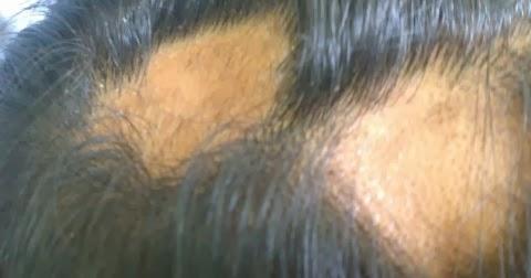 the causes of alopecia areata alopecia areata
