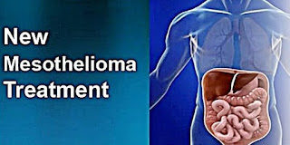 What Is Mesothelioma? Types and Treatment Options