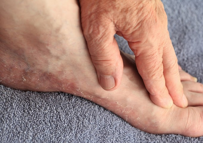 Itchy Feet: Causes, Symptoms, and Natural Home Remedies