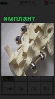 Позвоночник с грыжей, куда вставлен имплант для восстановления здоровья