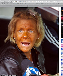 Woman addicted to sunbeds - tanorexic Patricia Krentcil