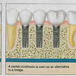 The Advantages of Dental Implants over False Teeth