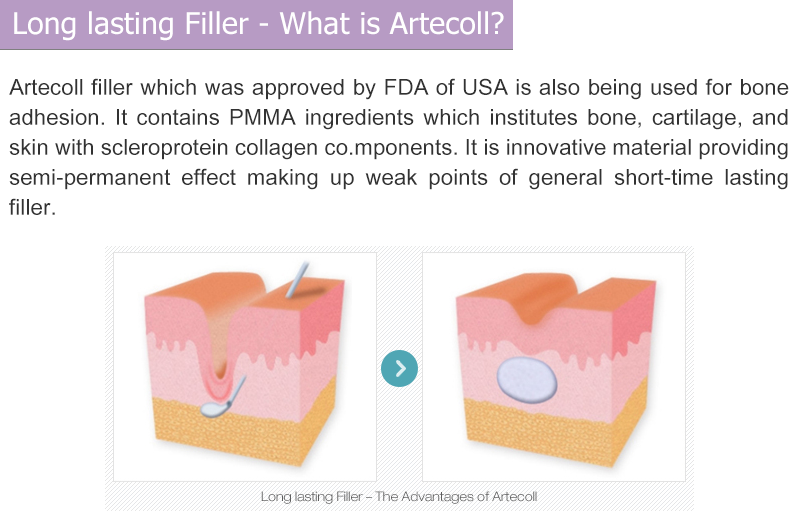 Long lasting Filler - What is Artecoll?