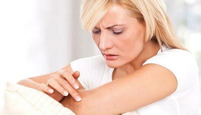 Ciri-ciri Penyakit Herpes
